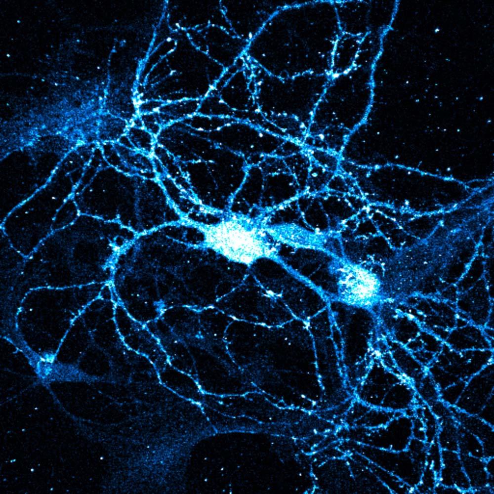 シナプス 神経回路